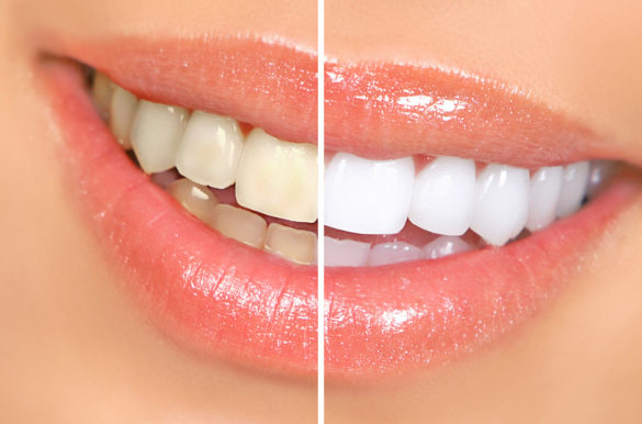 Teeth Whitening Racine